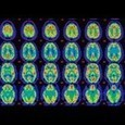 The Emotional Life Of The Brain - Forbes   Just Plain Interesting Stuff!   Scoop.it