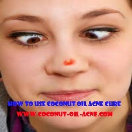 Coconut Oil For Acne Recipes And Benefits | Does Coconut Oil Really Treat Acne? If so How? | Scoop.it
