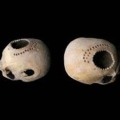 Ancient cranial surgery | Heritage Daily | Kiosque du monde : Amériques | Scoop.it