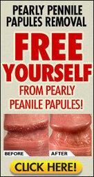 hirsuties papillaris genitalis | Mens Health LLC | Scoop.it