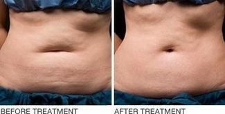 Most popular fat removal techniques in Sydney | Stevens | Scoop.it