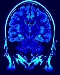 Ondes cérébrales : domestiquez votre cerveau par l'auto-hypnose | Psycho-Santé | Scoop.it