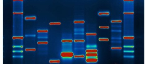 Genes Fit? Genetic Testing Joins Wellness Options | Health Advocacy | Scoop.it