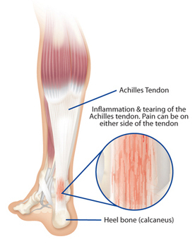 Treatment for Achilles Tendonitis in Augusta GA | Georgia Clinic of Chiropractic Blog - Augusta GA | Health Conditions | Scoop.it