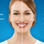 Invisalign Treatment in Melbourne & Preston | Preston Smiles | Scoop.it