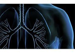 Researchers Report Double Dose of Promising Lung Cancer Findings | Lung Cancer Dispatch | Scoop.it