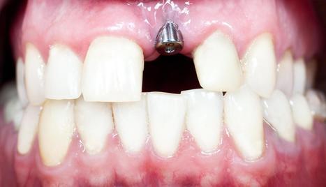 Dental Implants Encinitas | Pacificdental | Scoop.it