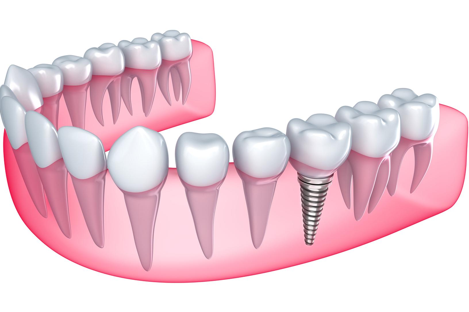 Протезирование зубов схема зубов