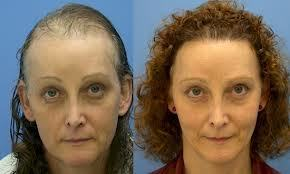 Cause of Hair Fall in Women & Hair Transplant Clinic | Hair's Only Solution | Scoop.it