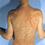 Psoriasis Erythrodermic Treatment | Psoriasis | Scoop.it