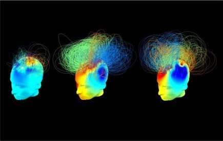 'Hidden brain signatures' of consciousness in vegetative state patients discovered | KurzweilAI | The future of medicine and health | Scoop.it
