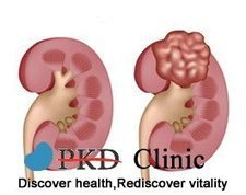 Basic Information about Kidney Cyst - PKD Treatment | chronic kidney disease | Scoop.it