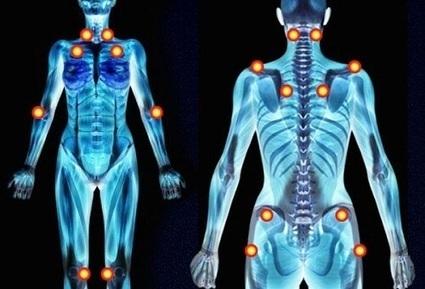 À quoi peuvent-être dues les douleurs dans les bras et les jambes? | Accompagnement mieux-être | Scoop.it