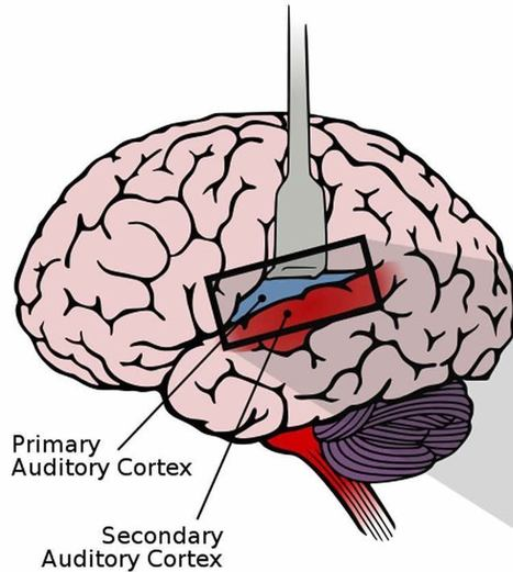 The Auditory Cortex of Hearing and Deaf People are Almost Identical | Bounded Rationality and Beyond | Scoop.it