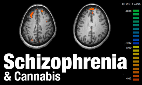 Brazilian Study: Cannabis Therapy May Help Treat Schizophrenia | Vloasis sci-tech | Scoop.it