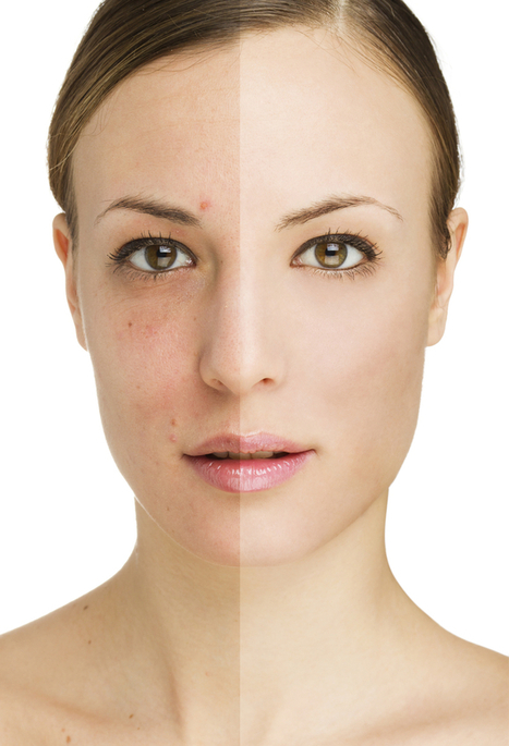 What are the Different Kinds of Facial Implants? | Beauty | Scoop.it