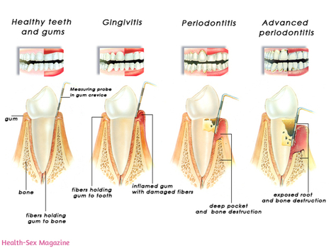 Did you know severe gum disease could be a cause of impotency? | Health and Care | Scoop.it