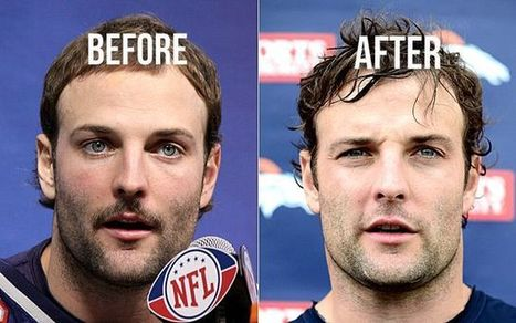 Singapore Aesthetic and Hair Transplant Clinic: A Look into Wes Welker Hair Transplant | Hair Transplant News | Scoop.it
