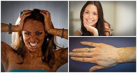Top 7 Facts To Know About Vitiligo And Its Treatment | Remedystore | Scoop.it