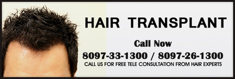 Advanced hair transplant – Hair Doubling techniques | Transform Your Personality from Confused to Confident With Hair Transplant | Scoop.it