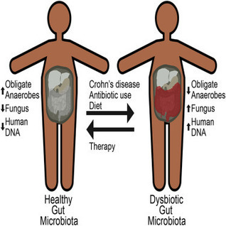 Inflammation, Antibiotics, and Diet as Environmental Stressors of the Gut Microbiome in Pediatric Crohn's Disease   Bioinformatics and holobiota   Scoop.it