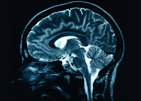 Worldwide database of brain images for chronic pain conditions designed to accelerate research, treatments | Managing Technology and Talent for Learning & Innovation | Scoop.it