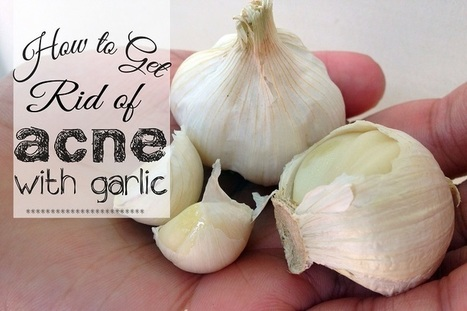 How to Get Rid of Acne with Garlic | Beauty Tips | Scoop.it