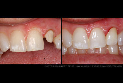 Cosmetic Dentistry: See Before- and-After Pictures | Dentistry | Scoop.it