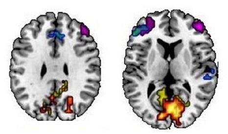 Dime cómo recuerdas y te diré cómo es tu cerebro | INTELIGENCIA GLOBAL | Scoop.it