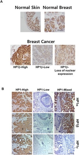 HP1β Is a Biomarker for Breast Cancer Prognosis and PARP Inhibitor Therapy   Salus (Health)   Scoop.it
