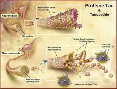 Alzheimer : un médicament contre la protéine Tau efficace chez l'animal   mon scoop it   Scoop.it