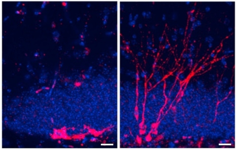 Opening the Black Box of Neurogenesis | Cognitive Neuroscience | Scoop.it