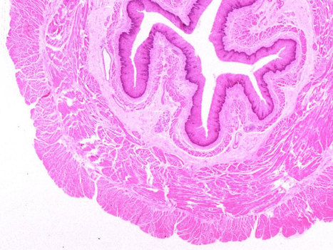 (O)Esophagus from Histology @Yale | Group 13 | Scoop.it