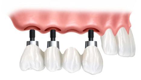Top Dental Implant Center in India | Best Dental Hospital Chanda Nagar | Scoop.it