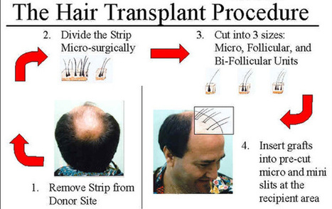 Addressing Frequent Concerns towards Hair Transplant   Hair and Skin   Scoop.it