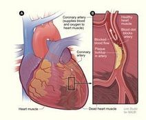 The link between Cholesterol and Alzheimer's disease | Health Care Tips | Scoop.it