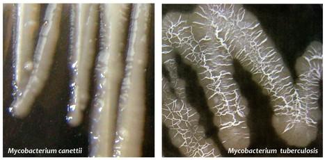 Tuberculose : découverte d'une étape critique de l'évolution du bacille vers la pathogénicité   Institut de Pharmacologie et Biologie Structure   Scoop.it