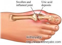 High Uric Acid In Kidneys: What Should We Notice | kidney | Scoop.it
