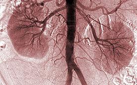 Urine Biomarkers Reveal Mitochondrial Dysfunction in Diabetic Kidney Disease | Glutathione | Scoop.it