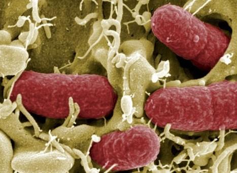 Escherichia coli entero hemorrágica o verotoxigénica (ECEH) | Escherichia coli | Scoop.it