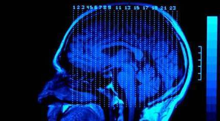 Ohio Traumatic Brain Injury Attorneys | personal injury lawyer columbus | Scoop.it