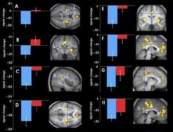 The Neurocritic: Gambling On Obscurity-January 2007 | Social Neuroscience Advances | Scoop.it
