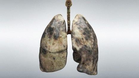Una terapia española reduce casi la totalidad de la metástasis del cáncer de pulmón | Salud, enfermedad y medicina. | Scoop.it