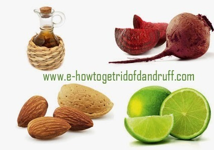 How to Get Rid of Dandruff Fast - 6 Simple Tips | Dandruff | Scoop.it