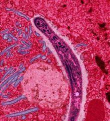 Il riscaldamento globale combatte la malaria | Med News | Scoop.it