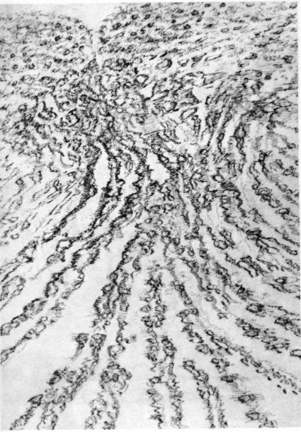 Psychographies fractales d'Henri Michaux / Autoréférence subjective - Arts / Numérisation / Fractals | pour enfant | Scoop.it