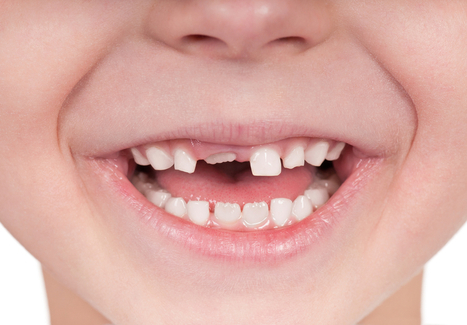 Dental Health & Kids: A Guide for Every Age - LiveScience.com | Oral Health | Scoop.it