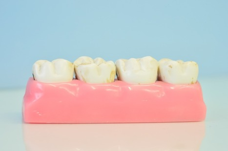 Caring for Your Dental Implants | Dr. Anthony Farole, D.M.D. | Scoop.it