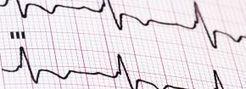 Presión arterial nocturna y Función cognitiva | Salud Publica | Scoop.it