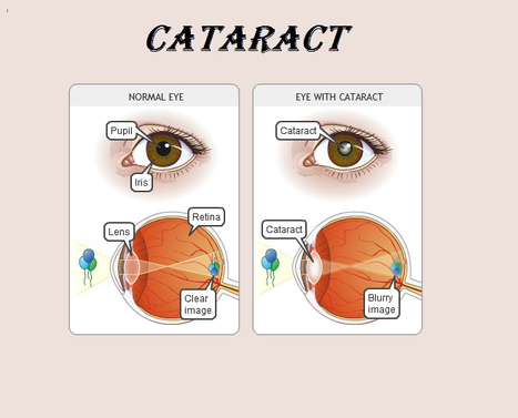Safe & Painless Cataract Treatment & Surgery by Sameer Kaushal   Eye Care   Scoop.it